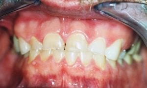 Chipped Teeth Due to Grinding Before Dental Procedure Photo at Friendly Smiles Center in Mount Laurel, NJ