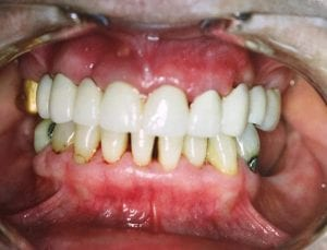 Yellowish Teeth and Gaps between teeth After Dental Procedure Photo at Friendly Smiles Center in Mount Laurel, NJ