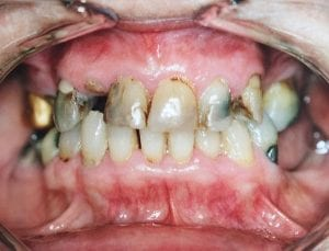 Damaged Teeth due to Cavity and Plaque Before Dental Procedure Photo at Friendly Smiles Center in Mount Laurel, NJ