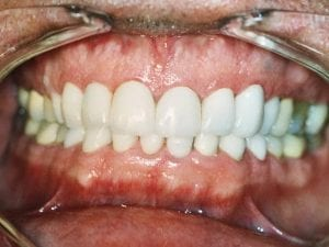 Patient's chipped and gap in teeth fixed and whitened After Dental Procedure Photo at Friendly Smiles Center in Mount Laurel, NJ