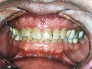 Patient with chipped tooth and gaps in teeth Before Dental Procedure Photo at Friendly Smiles Center in Mount Laurel, NJ