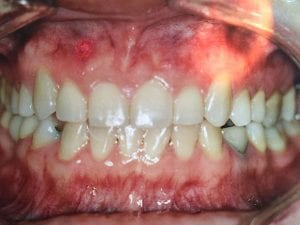 Patient's Teeth After Orthodontics Treatment After Dental Procedure Photo at Friendly Smiles Center in Mount Laurel, NJ