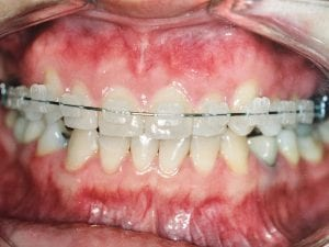 Patient with Clear Braces Before Dental Procedure Photo at Friendly Smiles Center in Mount Laurel, NJ