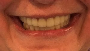 Patient 1's Fixed Teeth After Dental Procedure Photo at Friendly Smiles Center in Mount Laurel, NJ