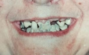 Patient 1's Broken Teeth Before Dental Procedure Photo at Friendly Smiles Center in Mount Laurel, NJ