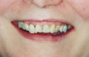 Chipped Teeth Before Dental Procedure Photo at Friendly Smiles Center in Mount Laurel, NJ