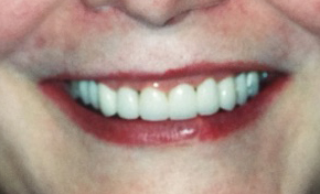 Fixed Damaged Teeth After Dental Procedure Photo at Friendly Smiles Center in Mount Laurel, NJ
