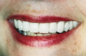 Teeth After Whitening Treatment After Dental Procedure Photo at Friendly Smiles Center in Mount Laurel, NJ