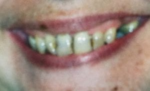 Damaged and Yellowish Teeth Before Dental Procedure Photo at Friendly Smiles Center in Mount Laurel, NJ