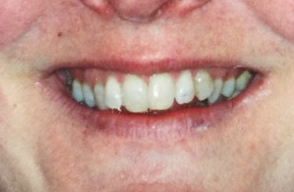 Misaligned Teeth Before Dental Procedure Photo at Friendly Smiles Center in Mount Laurel, NJ