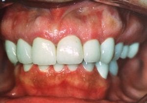 Cleaned and Restored Teeth After Dental Procedure Photo at Friendly Smiles Center in Mount Laurel, NJ