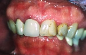 Teeth with Cavities Before Dental Procedure Photo at Friendly Smiles Center in Mount Laurel, NJ