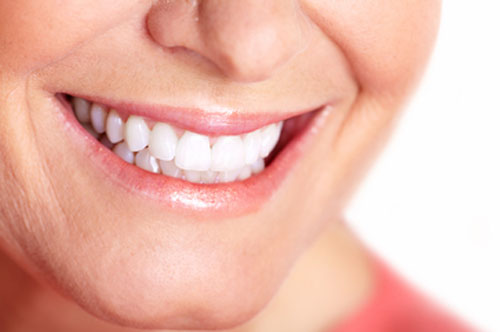 Teeth Whitening Look after Treatment | Friendly Smiles Center in Mount Laurel, NJ - Dr. Robert Chase